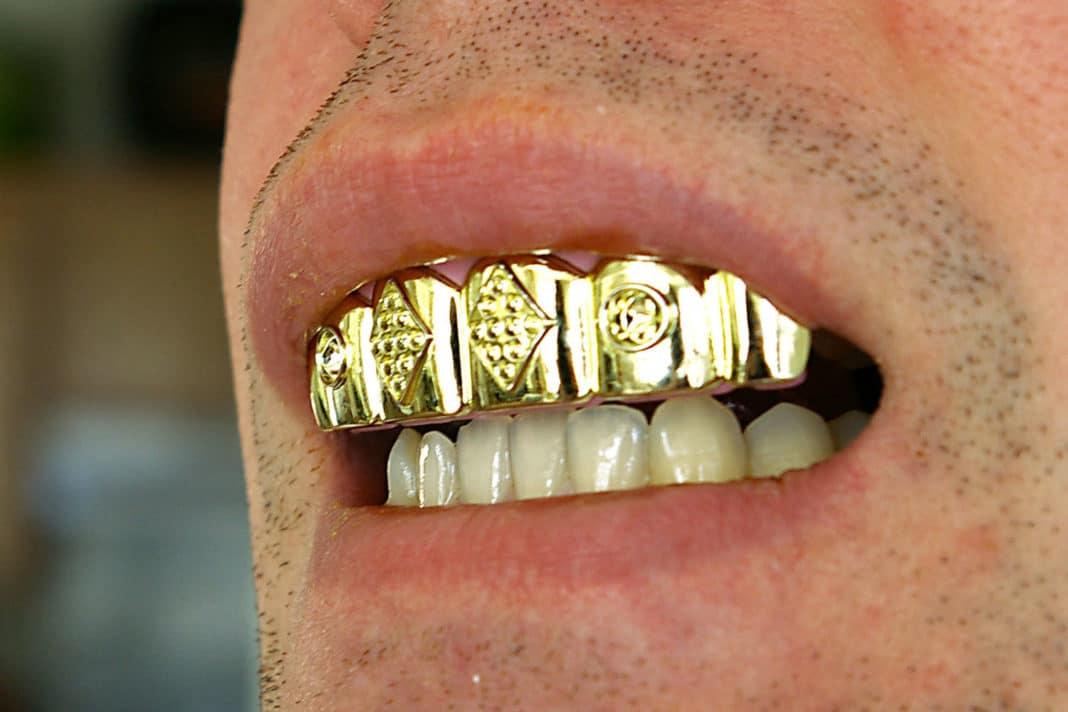 Из какого золота делают зубы: выгодно или ненужная трата денег?